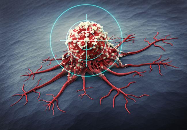 Các nhà nghiên cứu Israel phát triển thuật toán chẩn đoán ung thư - Ảnh 1.