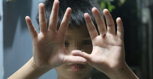 Có hay không bé trai ở Hóc Môn bị cha ruột đánh nát tay, bắt đi bán vé số?