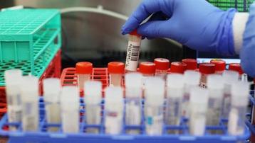 Anh: Phát hiện thêm biến thể mới đáng ngại hơn của virus SARS-CoV-2