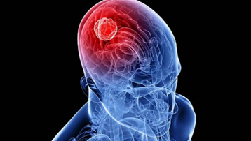 U não khiến 'trung tâm điều khiển' của con người gặp nhiều vấn đề