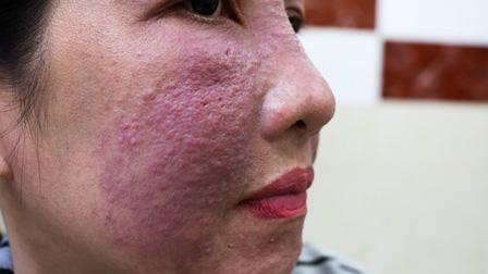 Tham trắng da cấp tốc đón Tết, nhiều chị em bị tai biến da mặt