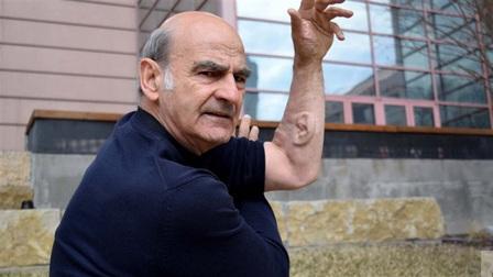 Kỳ lạ người đàn ông 'mọc' thêm tai ở cánh tay, nguyên do còn gây kinh ngạc hơn